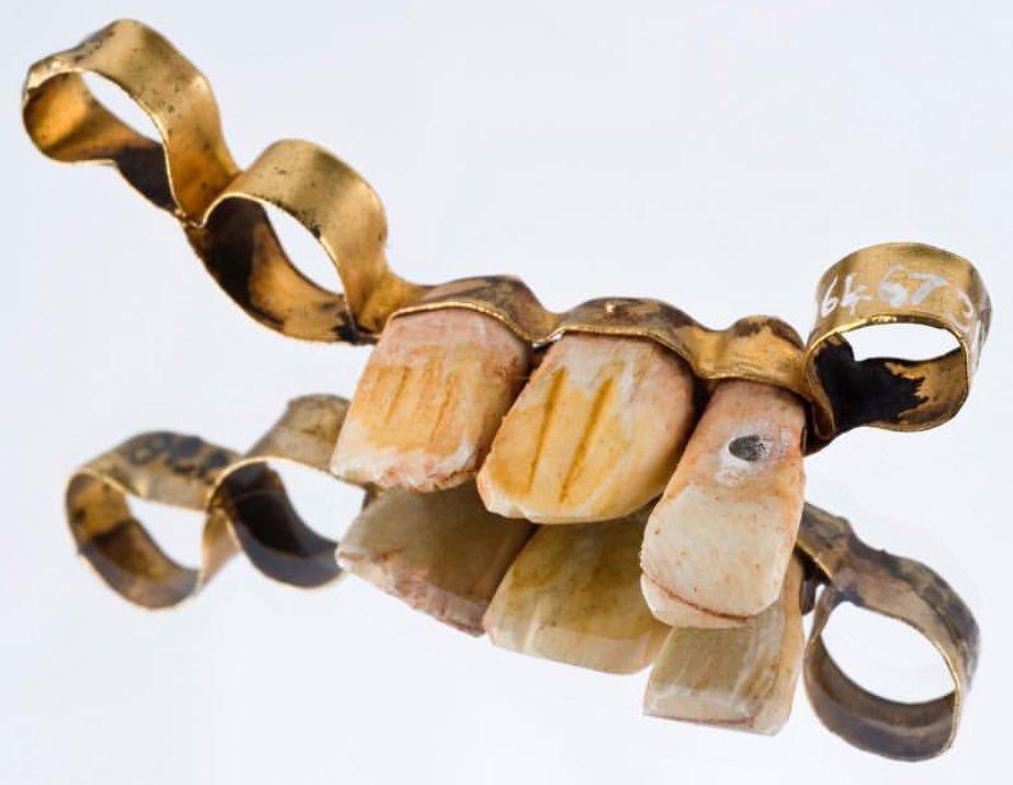 13 тон золота в рік на зуби та зубний протез - найкращий подарунок на весілля , фото-3